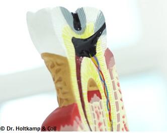 endodontie_dr-holtkamp Die Lebensdauer der Zähne verlängern