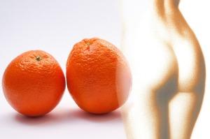 Zellulitis oder Orangenhaut